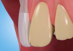 Stained Discoloured Teeth