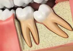 Wisdom Teeth Cambridge - Burwell Dental Surgery